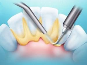 udalenie-obrazovanii-na-zubah