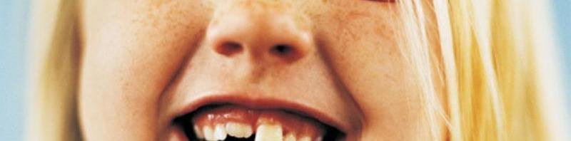 Утраченные зубы вырастут вновь